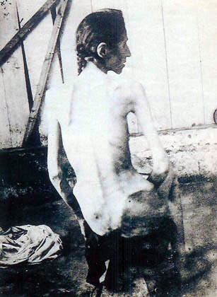 Armenian woman, tortured by Turks